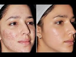 Gesicht einer Frau im Vorher/ Nachher Vergleich